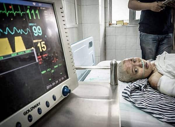 Xu Fan đang nhìn vào máy theo dõi nhịp tim sau vụ thiêu sống kinh hoàng.